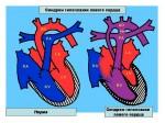 Гипоплазия левых отделов сердца