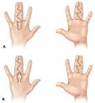 сращенные пальцы
